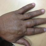 Congenital Vascular Malformation Case 5-5