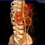 Peripheral Arterial Disease Case 11-2