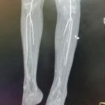 Peripheral Arterial Disease Case 11-6