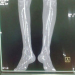 Peripheral Arterial Disease Case 13-10