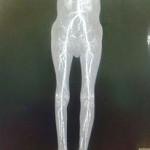Peripheral Arterial Disease Case 13-15
