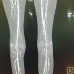 Peripheral Arterial Disease Case 13-6