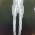 Peripheral Arterial Disease Case 13-8