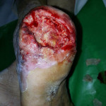 Peripheral Arterial Disease Case 16-1