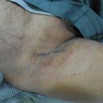 Peripheral Arterial Disease Case 5-2