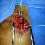 Peripheral Arterial Disease Case 5-6