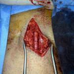 Peripheral Arterial Disease Case 5-7