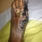 Peripheral Arterial Disease Case6-5
