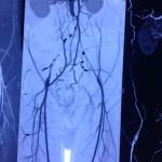 Peripheral Arterial Disease case 2-2