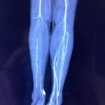 Peripheral Arterial Disease case 4-12