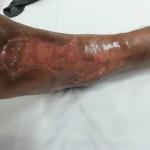 Venous and lymphatics-12