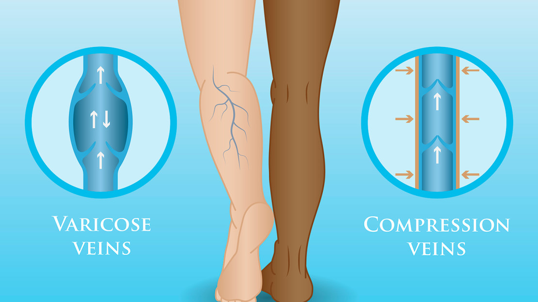 blog-compressionstockings