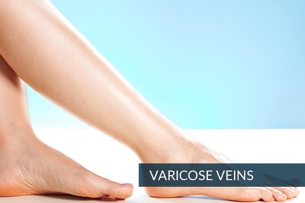 Varicose-Veins-1